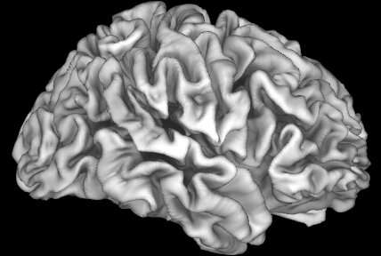 Risk of lead exposure linked to decreased brain volume in adolescents