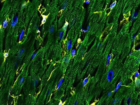 Single-cell map of the heart reveals wide cellular diversity