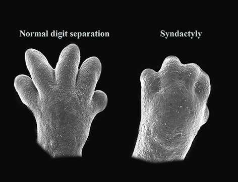 Image result for Skin and non-adhesive cells found to play pivotal role in formation of fingers