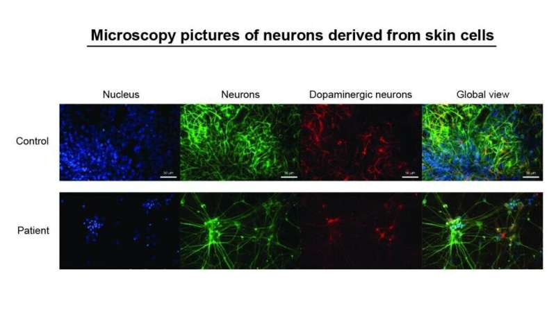Stem cell research delivers new points of attack against Parkinson's disease
