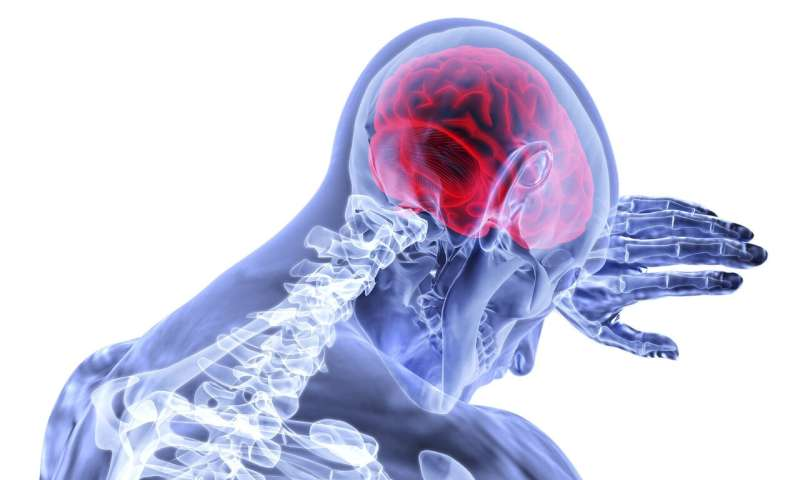 Study finds 10 metabolites associated with risk of stroke thumbnail