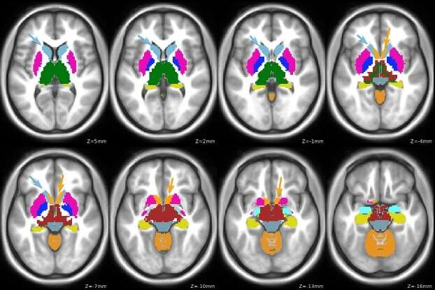 Study links brain function changes to genetic risk in attention deficit/hyperactivity disorder diagnosis