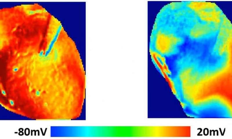Study shows hydroxychloroquine's harmful effects on heart rhythm