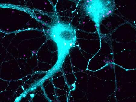Study targets gene associated with Alzheimer's disease