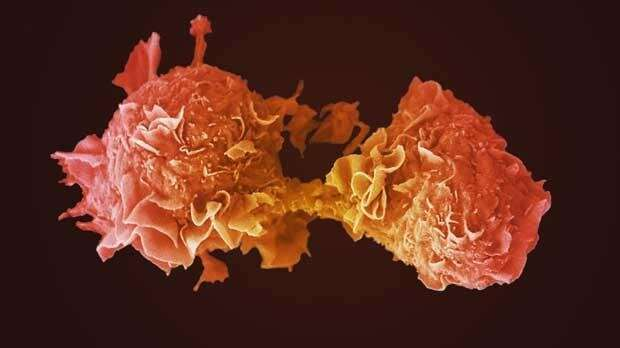Targeted drug for lung cancer approved for NHS use in England