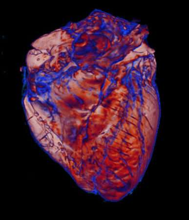 Team uses imaging to study ways the heart is affected by coronavirus