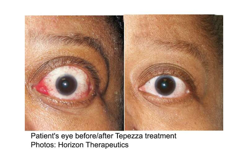 Teprotumumab Bests Placebo For Active Thyroid Eye Disease