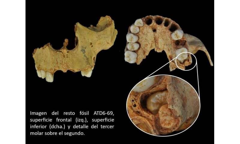The drawbacks of the modern face of Homo antecessor
