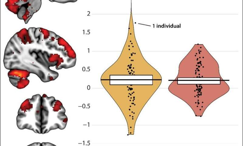 The overlap between fear and anxiety brain circuits