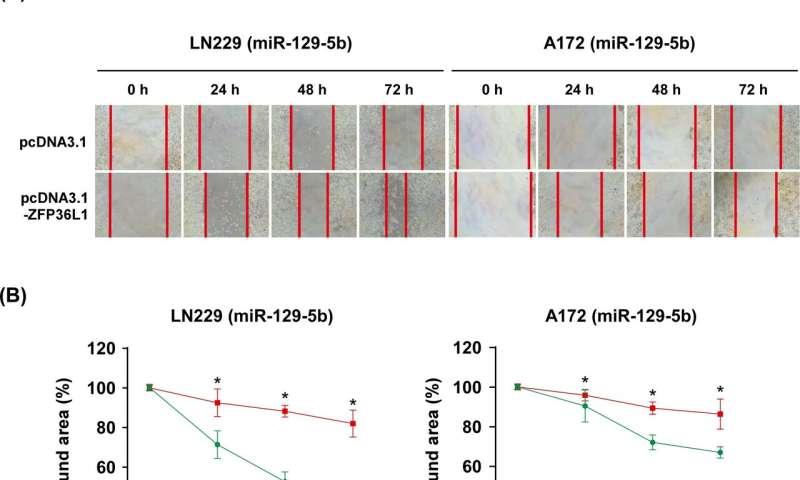 The role of miRNAs in glioblastoma multiforme