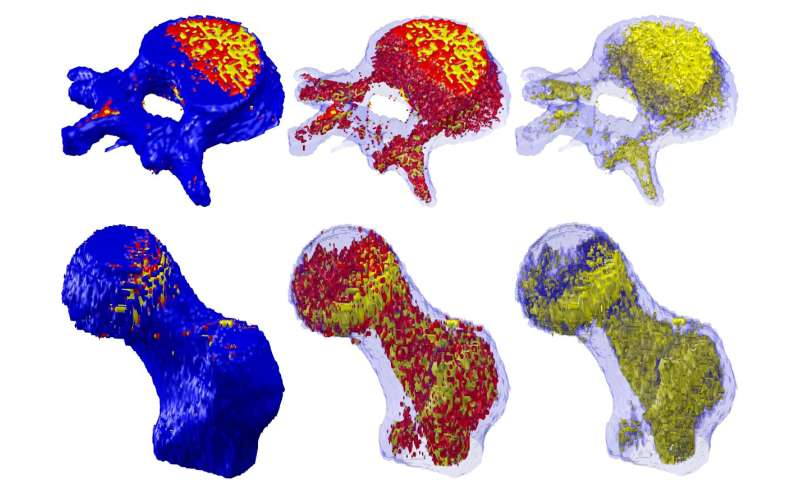Tool uses fat in bone and muscle to diagnose disease, predict falls and fractures