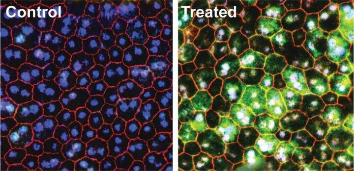 UCI-led study reveals restoration of retinal and visual function following gene therapy