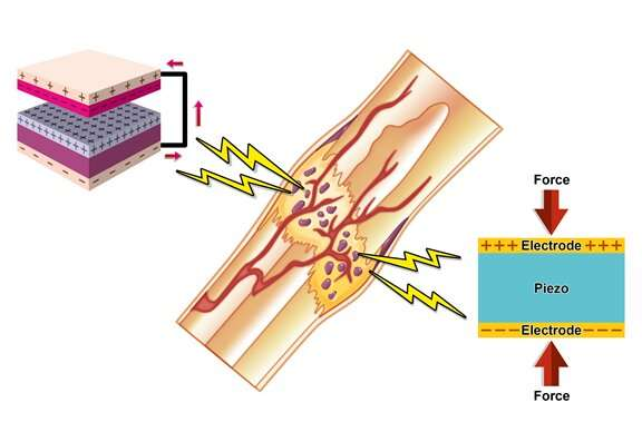Using bone's natural electricity to promote regeneration