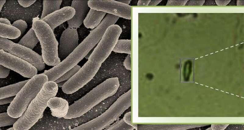 Using Raman microspectroscopy to rapidly detect disease-causing bacteria