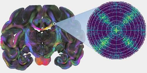 Using scattered light to map nerve fiber pathway crossing points in the brain
