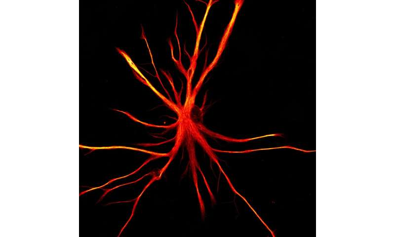 When astrocytes attack: Stem cell model shows possible mechanism behind neurodegeneration