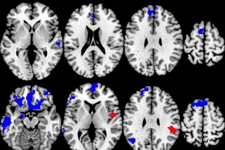 Which OCD treatment works best? New brain study could lead to more personalized choices