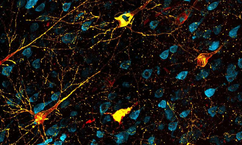 Animal model opens way to test Alzheimer's disease therapies