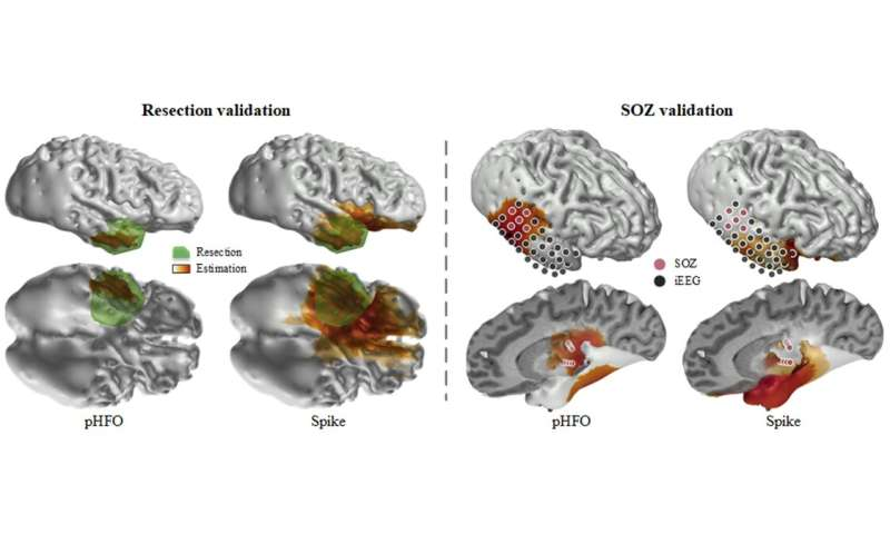 Fast brainwave oscillations identify and localize epileptic brain