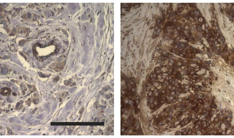 Therapeutic resistance linked to softer tissue environment in breast cancer