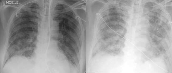 Untangling COVID-19 and TB
