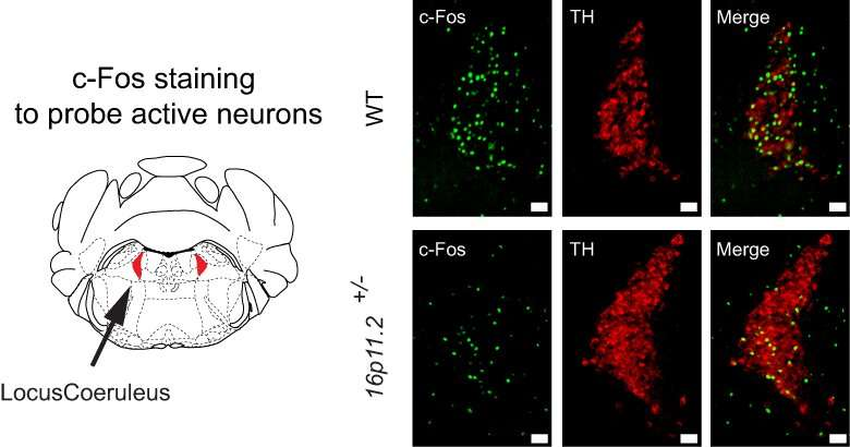 Researchers close in on root of slow motor learning in autism