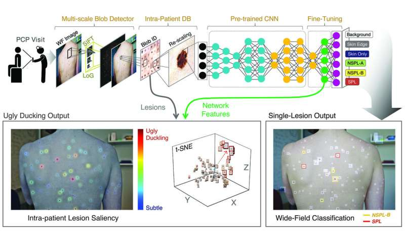 Neural network could help clinicians look for 'ugly duckling' pre-cancerous skin lesions