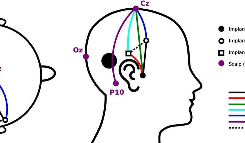 Experimental hearing implant succeeds in registering brain waves