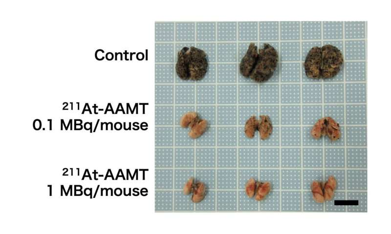 Alpha-ray missile therapy: tumor cells attacked from intracellular region