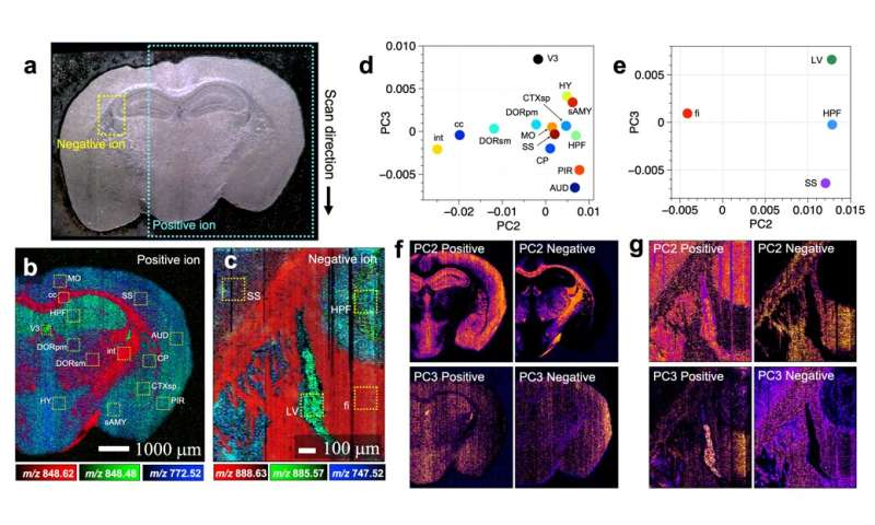 Want to diagnose brain diseases? A mass spectrometry imaging may one day help you