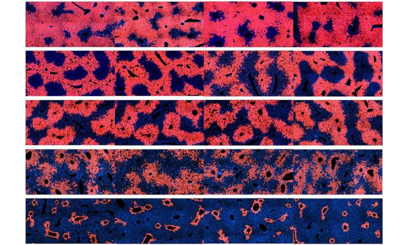Scientists identify cells responsible for liver tissue maintenance and regeneration