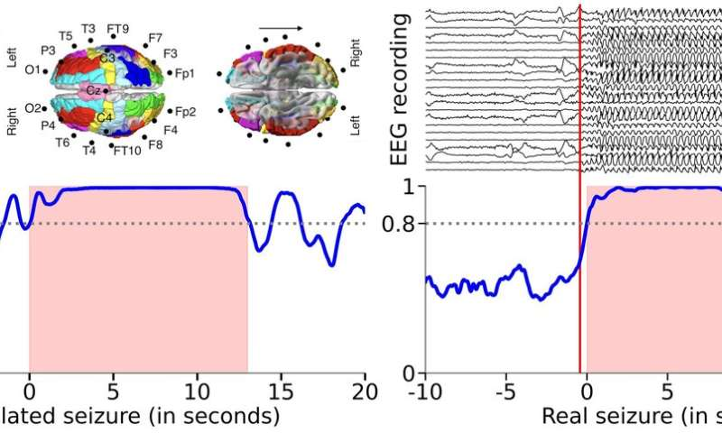 Physicists rewired a simulated human brain: How its rhythms changed and what it means for people with epilepsy