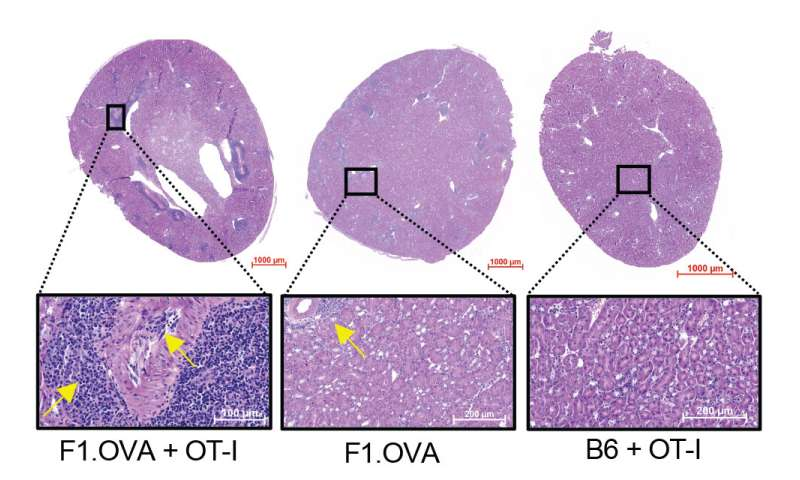 Researchers identify immune cells that contribute to transplant rejection