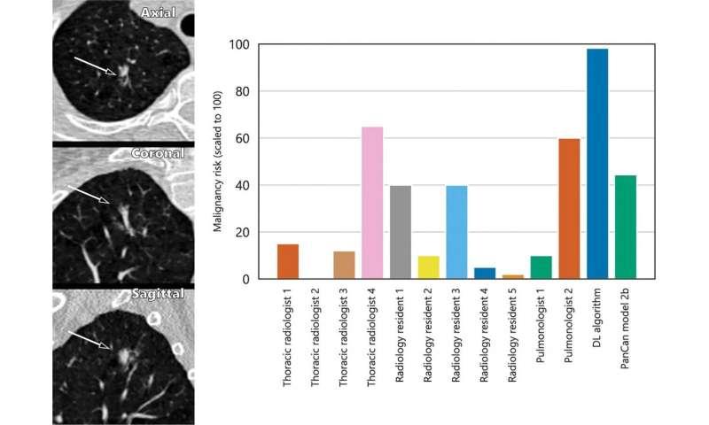 AI predicts lung cancer risk