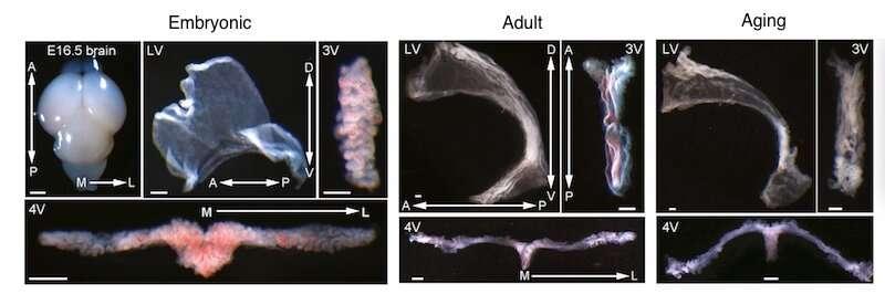 An 'atlas' of the brain's choroid plexus across the lifespan