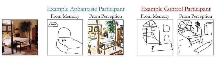 Aphantasia explained: some people can't form mental pictures