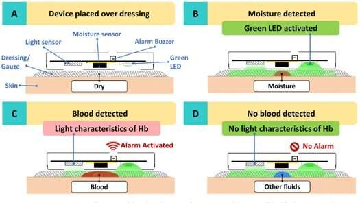 CGH and SUTD co-create and receive US patent for warning sensor in early detection of wound bleeding