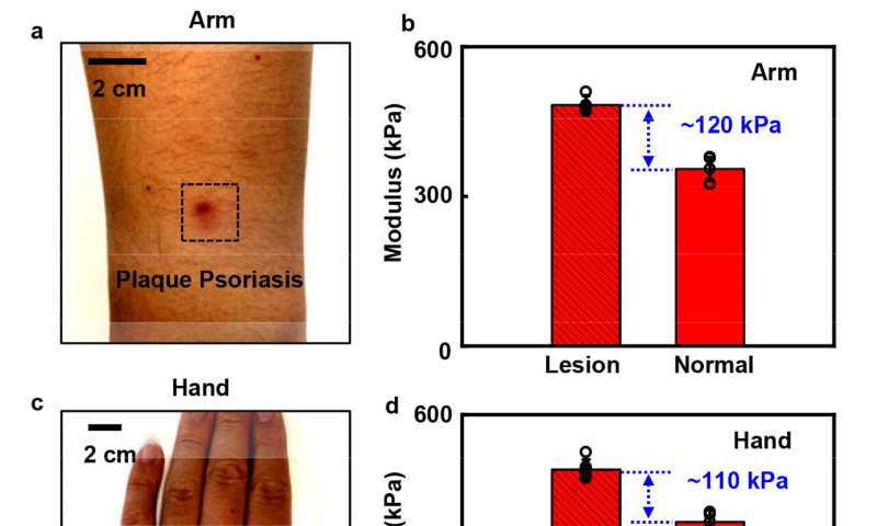 Detecting skin disorders based on tissue stiffness with a soft sensing device