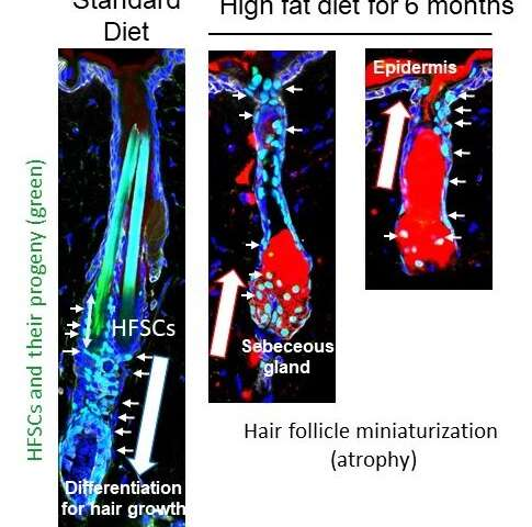 Eating less fat may save your hair