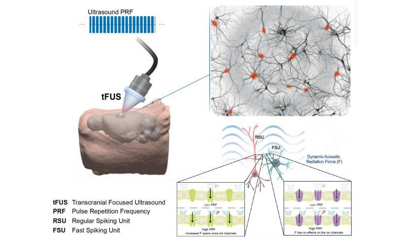 Focused ultrasound enables precise noninvasive therapy
