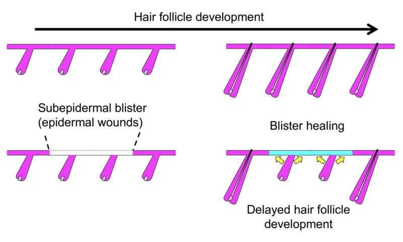 Hair follicles heal blisters at personal cost