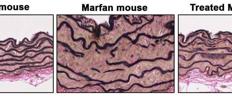 Inhibition of proteins activated by nitric oxide reverses aortic aneurysm in Marfan syndrome