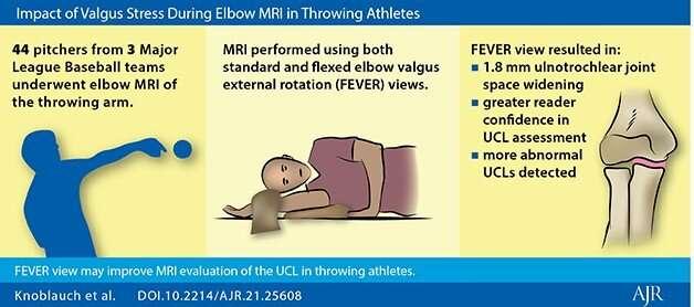 MLB 'FEVER': Improved MRI vision for Major League Baseball pitchers