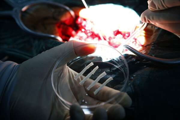 NeuroRegen scaffold transplantation brings hope to spinal cord injury patients