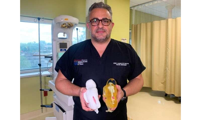 Orlando Health surgeons use 3D-printed fetus models to prepare for in-utero procedure