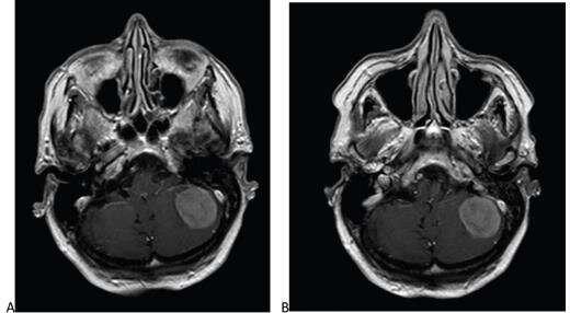 Reduced-dose gadobutrol vs standard-dose gadoterate for contrast-enhanced brain MRI