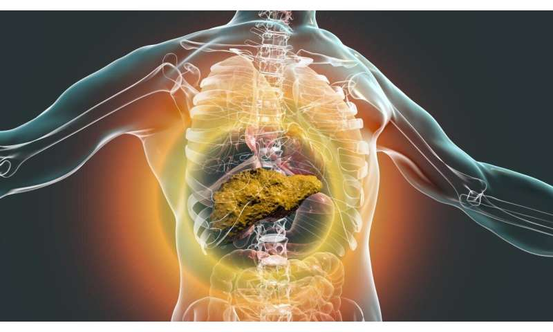 Scoring system to redefine how U.S. patients prioritized for liver transplant