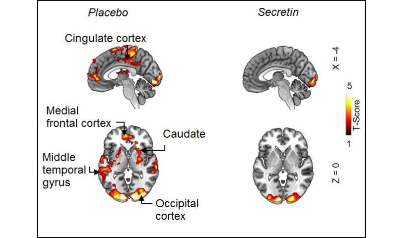 Secretin hormone induces satiation by activating brown fat