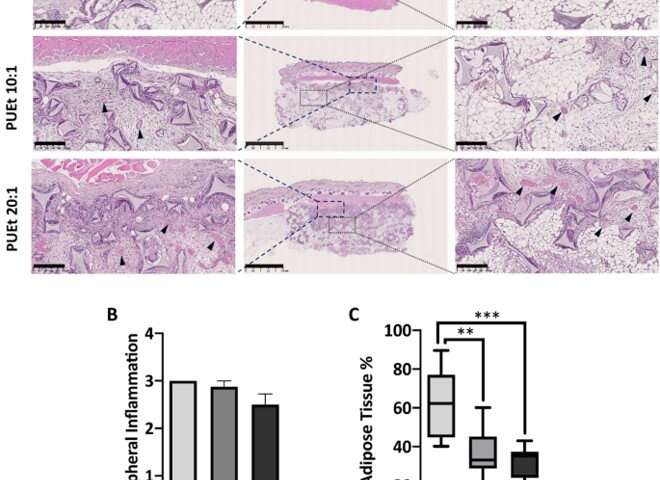 Soft tissue regeneration in a cell-free scaffold microenvironment