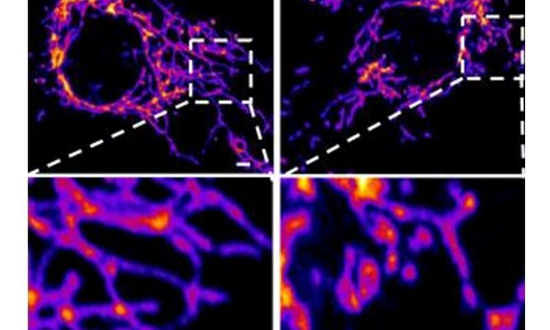 La nuova proteina spike del coronavirus gioca un ruolo chiave aggiuntivo nella malattia